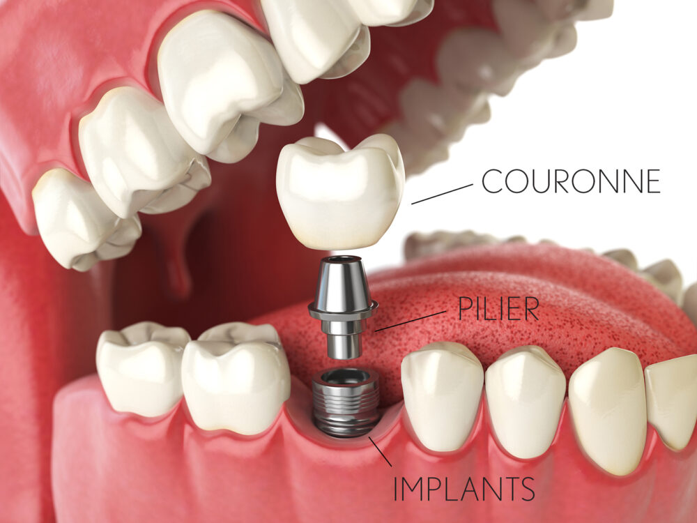 implants-dentaires