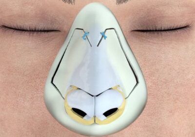rhinoplastie-ultrasonique-tunisie