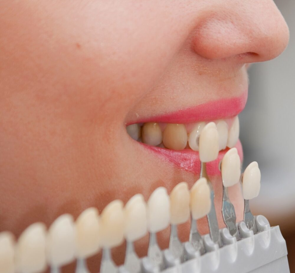 facette-dentaire-veneer-composite