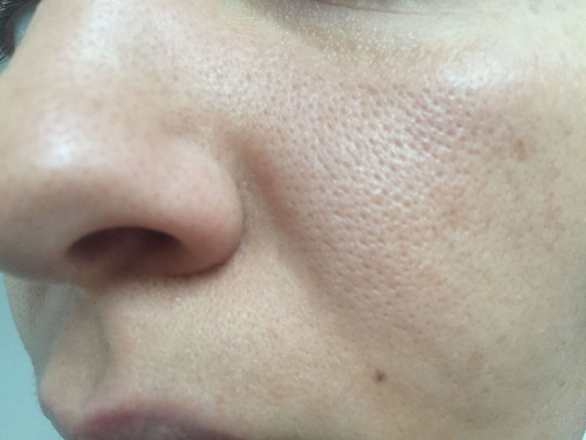pores-ouverts