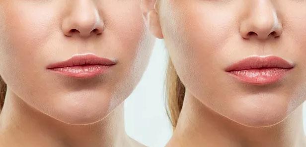 traitement-russian-lips