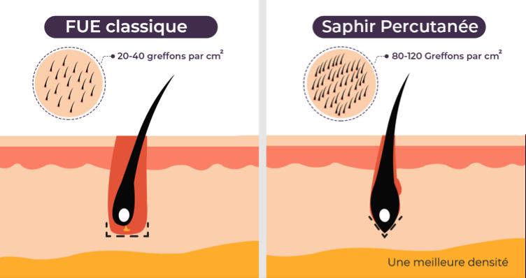 greffe-cheveux-sapphire