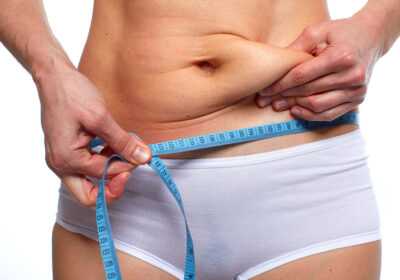 gonflement-bourrelets-apres-abdominoplastie