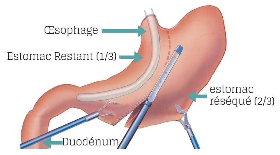 sleeve-gastrectomie
